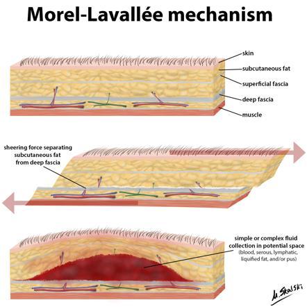 Morel-Lavallee Injury